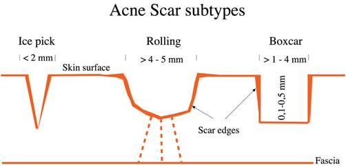 Acne-Scars1