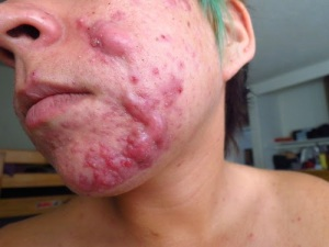 Cystic acne – larger pus filled lumps