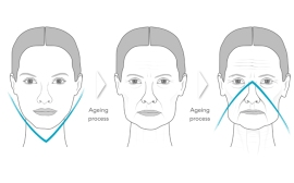 21-Ageing_process_engl_Low